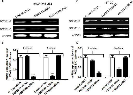 siRNA specifically targeting FOXM1 inhibits FOXM1 expression in both MDA-MB-231 and BT-20 cells.