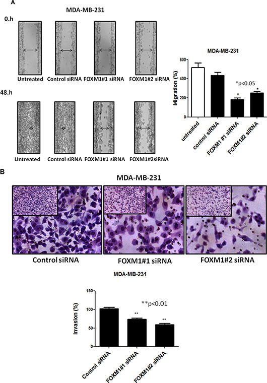 Effect of down-regulation of FOXM1 on invasion and migration of MDA-MB-231 cells.