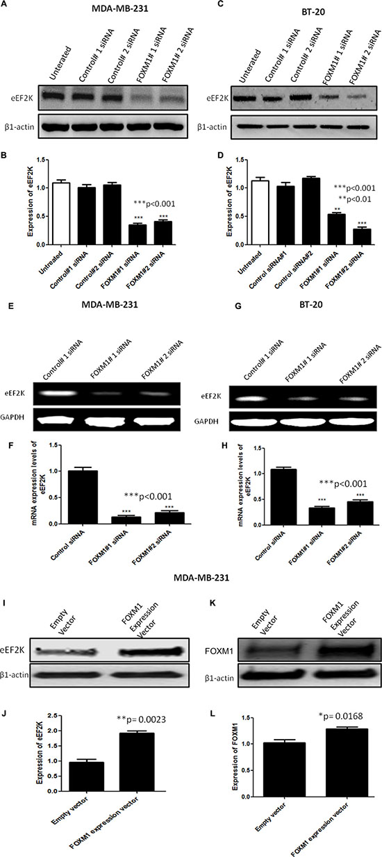 FOXM1 regulates EF2K mRNA and protein expression.