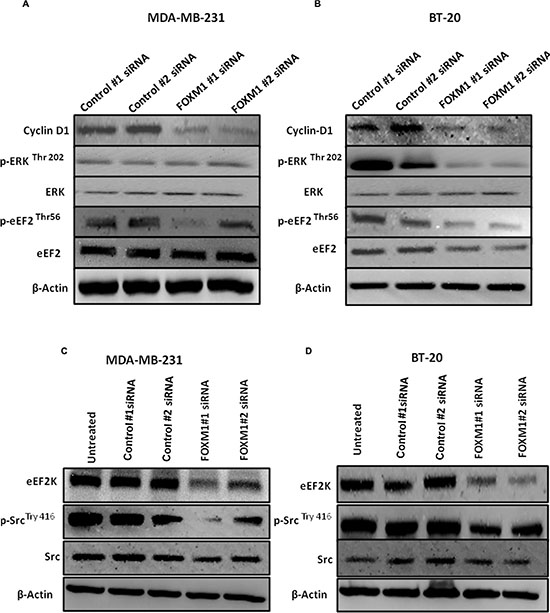 Down-regulation of FOXM1 inhibits expression of downstream molecular targets of eEF2K.