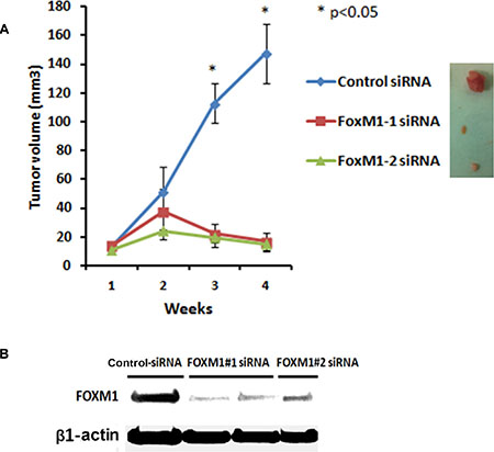 Systemic administration of liposomal FOXM1 siRNA inhibits tumor growth in an orthotopic mouse MDA-MB-231 xenograft model.