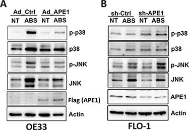 APE1 regulates acidic bile salts-induced activation of JNK and p38 pathways.