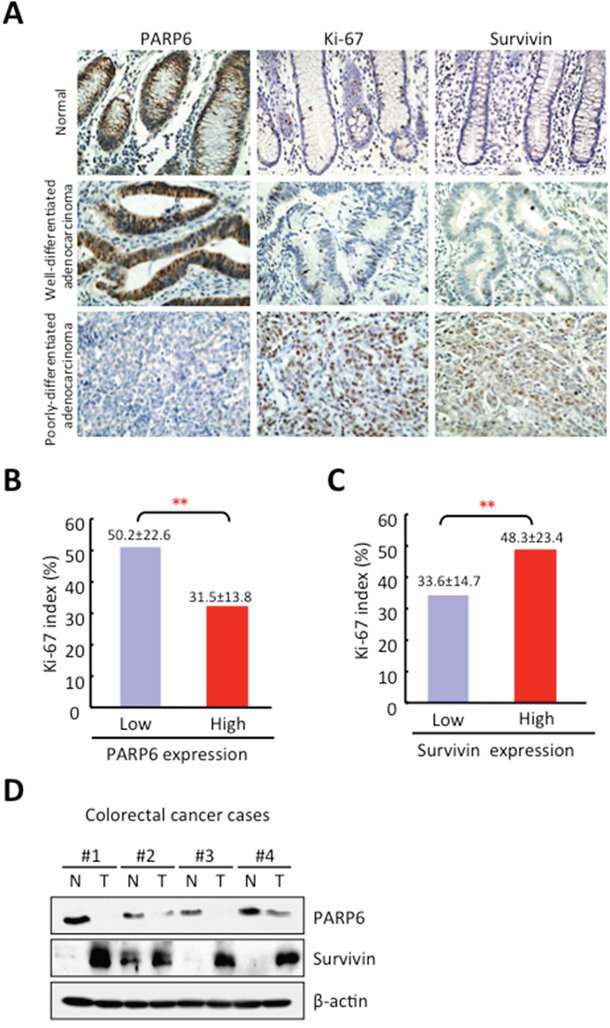 Correlation between PARP6 and Survivin expression in CRC.