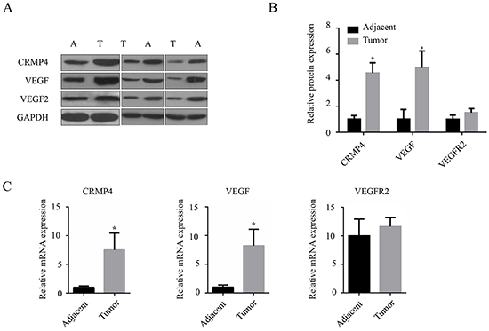 Quantification of VEGF, VEGFR2 and CRMP4 proteins and mRNA levels in gastric cancer tissues.