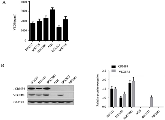 Expression of CRMP4, VEGFR2 and VEGF in various gastric carcinoma cell lines.