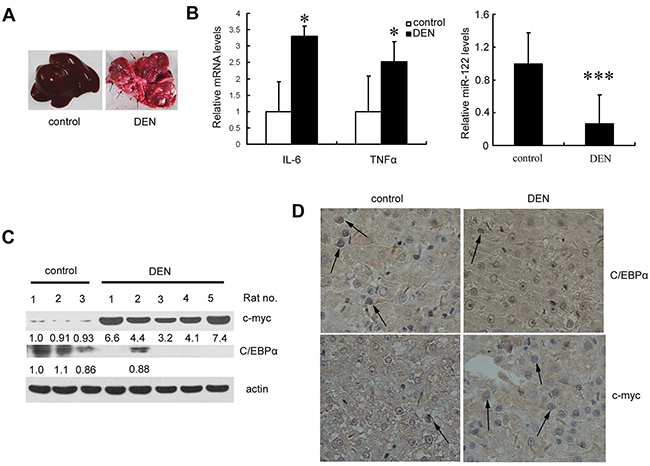 Liver miR-122 expression is decreased, whereas IL-6 and TNF-α expression are increased, in a DEN-induced rat hepatoma model.