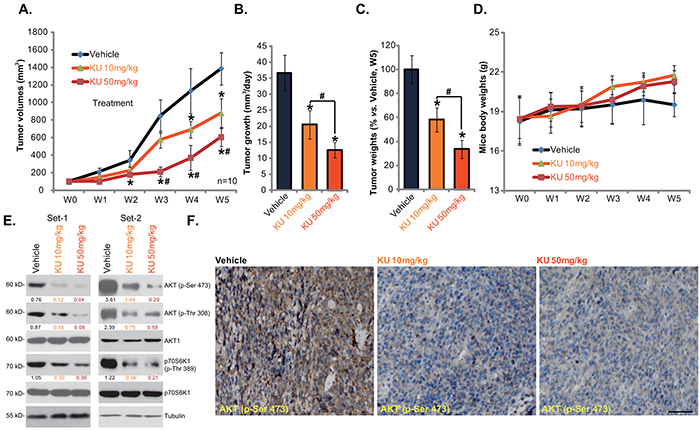 KU-0060648 suppresses HepG2 xenograft growth in nude mice.