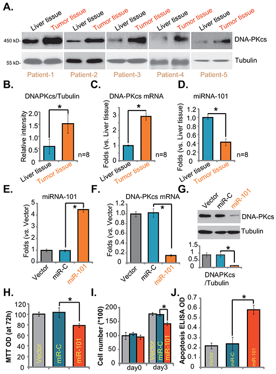 DNA-PKcs upregulation and miRNA-101 downregulation in human HCC cells and tissues.