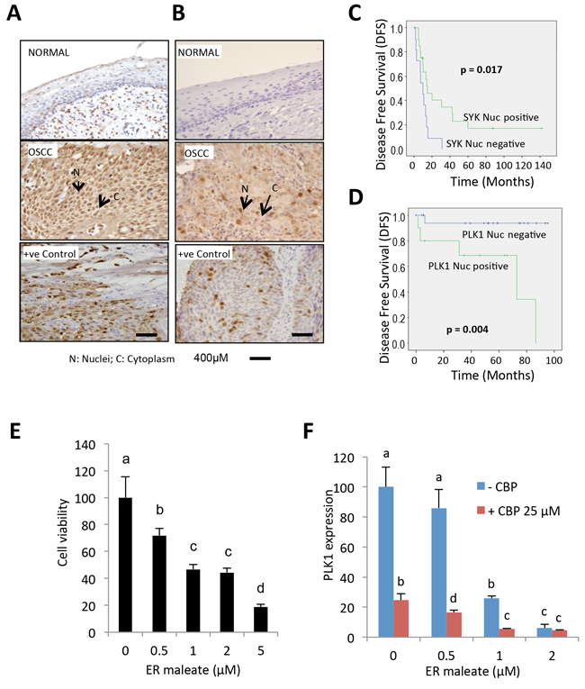 IHC analysis of Syk and PLK1 in tumor tissues and ER maleate effect on human OSCC derived cells.