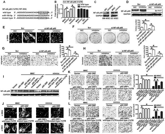 miR-155-5p inhibition triggers transition of BM-MSC to GC-MSC-like cells via NF-κB p65 targeting.