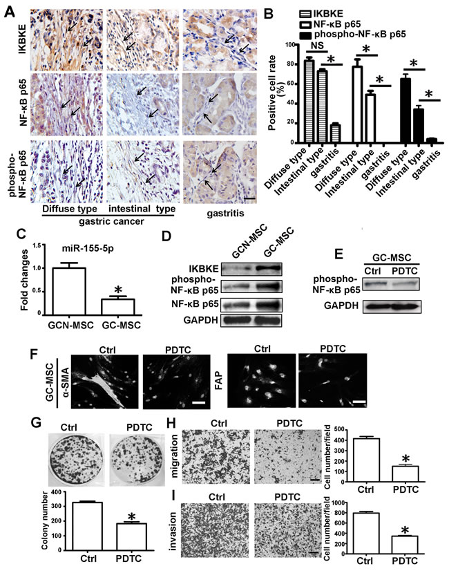 NF-κB p65 protein is enriched and activated in MSC-like cells of gastric cancer tissues.
