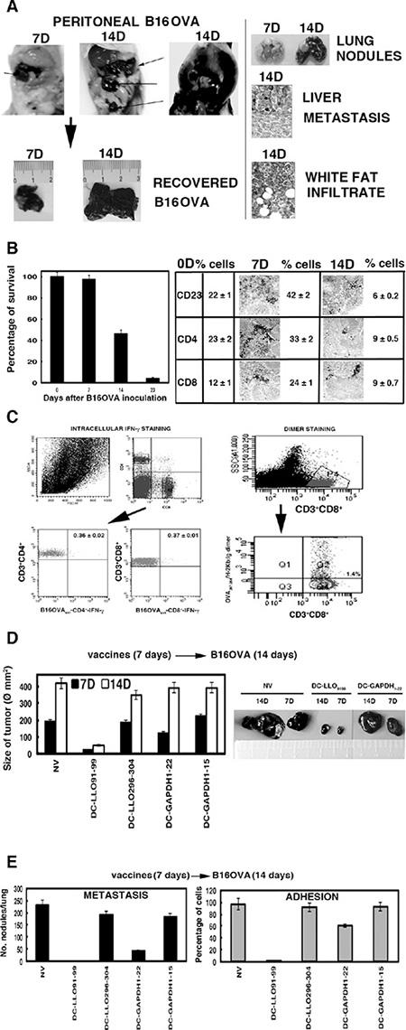 B16OVA model of metastatic melanoma and DC vaccination.