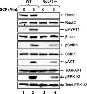 Rock1 regulates KIT mediated signaling in BMMCs.