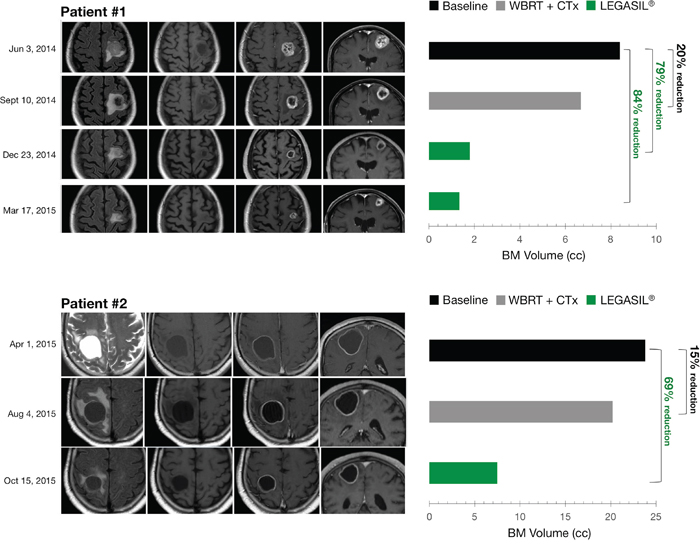 Left panels. MR Imaging of brain metastasis changes following CTx+WBRT and Legasil® treatments.