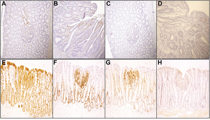 Representative immunohistochemistry profiles of colon tissues from PIRC rats treated with 100 μg B(a)P/kg body weight + Western diet (200x magnification):