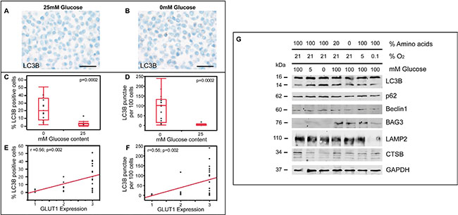 Glucose depletion is a more potent inducer of ALP than hypoxia in glioma cells.