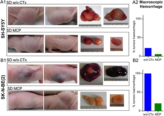 Predominant intratumoral hemorrhage in MYCN-amplified tumors is reduced upon MCP treatment.