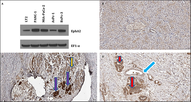 Expression pattern of EphA2 in cancer cells and pancreatic tissues.