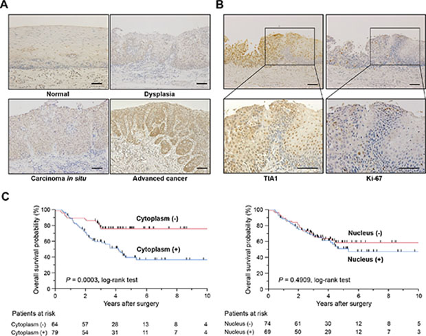 TIA1 protein overexpression and localization and its association with overall survival in primary ESCC tumors.