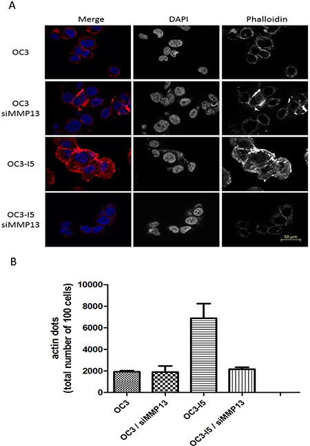 Effect of oral cancer cells on focal adhesion formation in the treated siMMP-13.