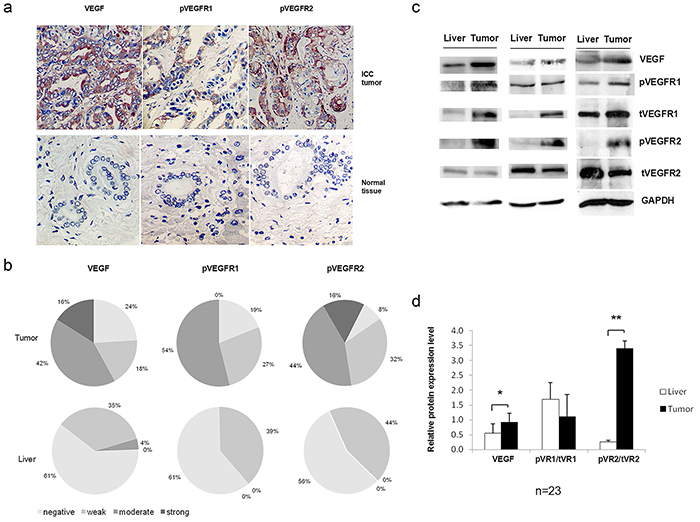 VEGF signaling was activated in intrahepatic cholangiocarcinoma (ICC) tissues.