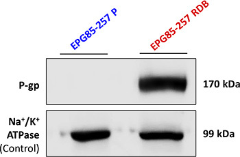 Quantification of P-gp expression in human gastric carcinoma cell lines.