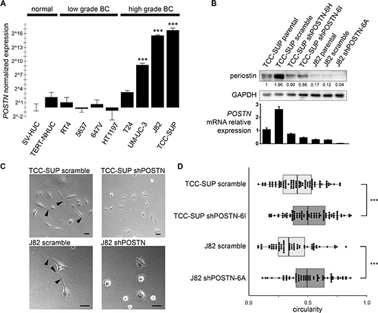 POSTN gene expression patterns in bladder cell lines and morphological effects of periostin suppression.