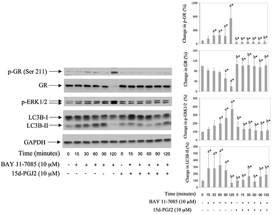 BAY 11-7085 induced autophagy, GR phosphorylation on Serine 211 and GR degradation are inhibited with PPARγ agonist 15d-PGJ2.