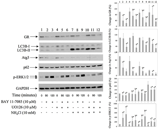 MEK/ERK inhibitor down regulates BAY 11-7085-induced autophagy and protects GR from BAY11-7085-induced degradation.