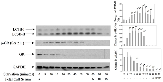 GR is both phosphorylated on Serine 211 and down regulated during starvation-induced autophagy in synovial fibroblsts.