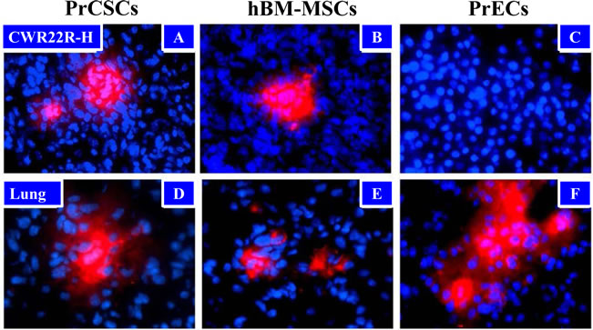 Tumor Trafficking of PrCSCs and hBM-MSCs to Human Cancer Xenografts in Mice.