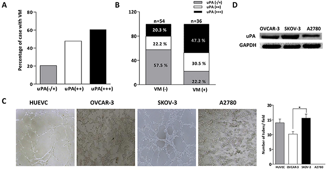 Correlation of uPA and VM formation in ovarian cancer tissues and cells.