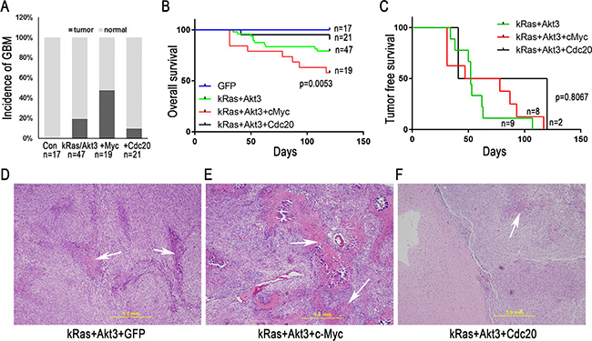 c-Myc promotes GBM development in CDKN2A-null mice with a combination of kRas and Akt3 signals.