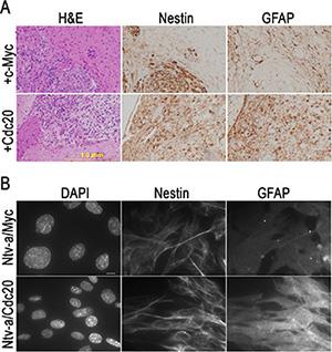 c-Myc inhibits glial progenitor cell differentiation in vivo and in vitro.