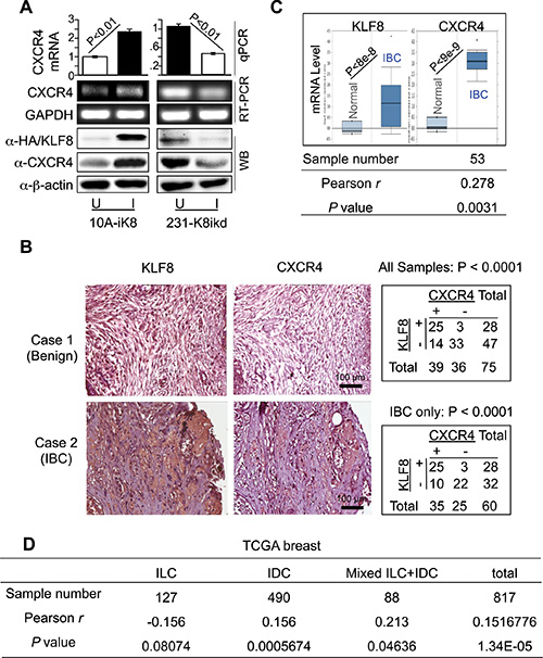 KLF8 upregulates CXCR4 expression associated with invasive potential.