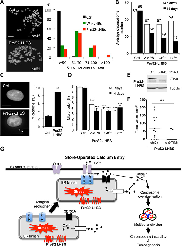 PreS2-LHBS promotes SOCE-dependent chromosome instability.