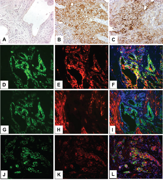 Expression of PKM2 in high-grade, muscle-invasive urothelial carcinoma of the transgenic mice.
