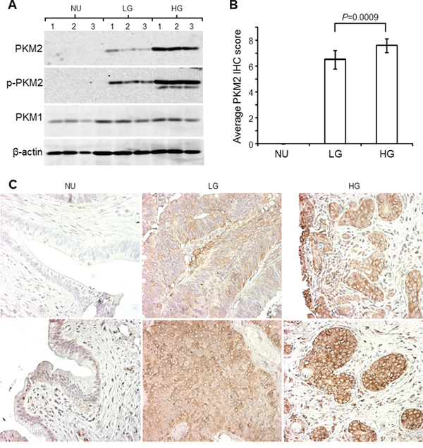 Expression of PKM2 in human urothelial carcinoma.
