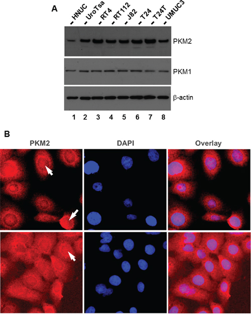 Expression and localization of PKM2 in cultured human urothelial carcinoma cell lines.