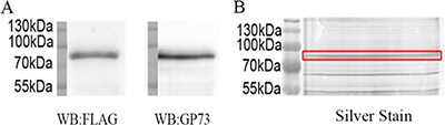 Purification of recombinant GP73 from SMMC7721.