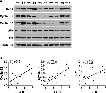 Relevance of E2F8-induced cyclin E1 and cyclin E2 activation in human cancers.