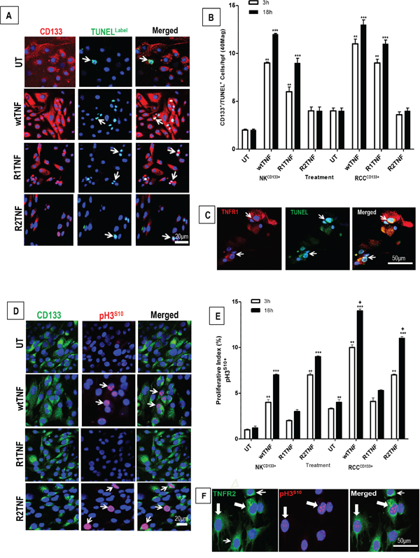 Representative confocal images of tissue-enriched CD133+cells from ccRCC and NK (RCCCD133+ and NKCD133+) immunostained for CD133 followed by TUNEL assay.
