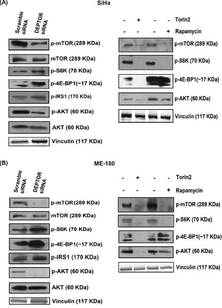 DEPTOR silencing inhibited the PI3K-AKT pathway.