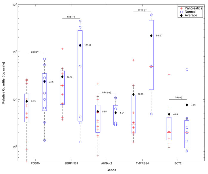 qRT-PCR validation of 5-gene PDAC classifier on retrospective microdissected FFPE samples from patients with PDAC.