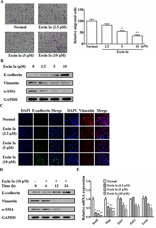 Effect of escin Ia on epithelial-mesenchymal transition in MDA-MB-231 cells.