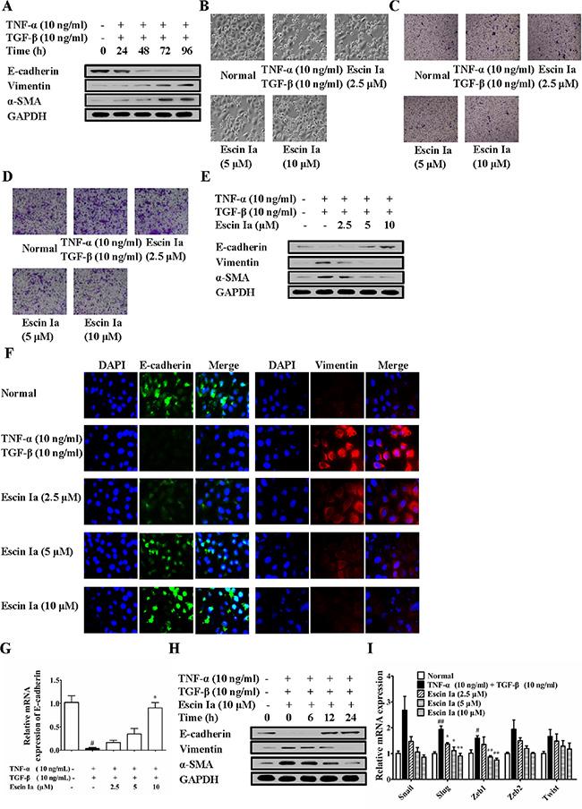Effect of escin Ia on epithelial-mesenchymal transition in TNF-α/TGF-β-stimulated MCF-7 cells.