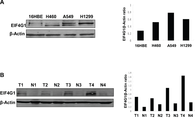 The increased levels of EIF4G1 expression in NSCLC cell lines and tumor tissues.