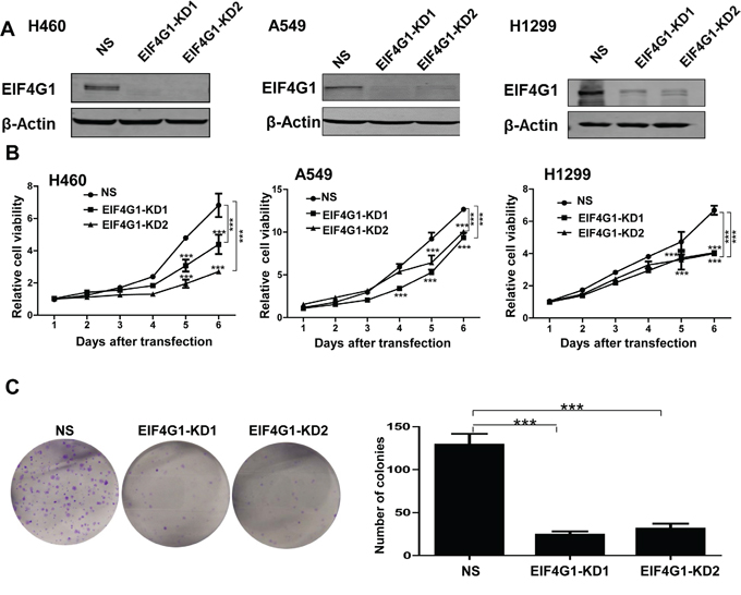 EIF4G1 is required for NSCLC cell proliferation and anchorage-independent growth.