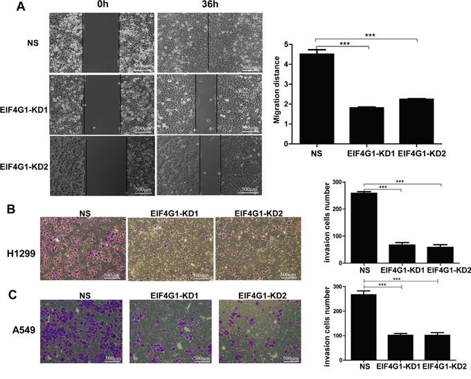 Targeting EIF4G1 blocks NSCLC cell migration and invasion.