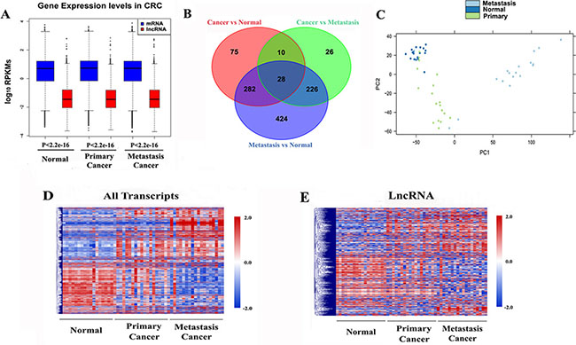 Global transcriptomic patterns in CRC.